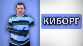 Интервью с киборгом | Потерял руки после удара током | Бионический протез за 6 лямов рублей