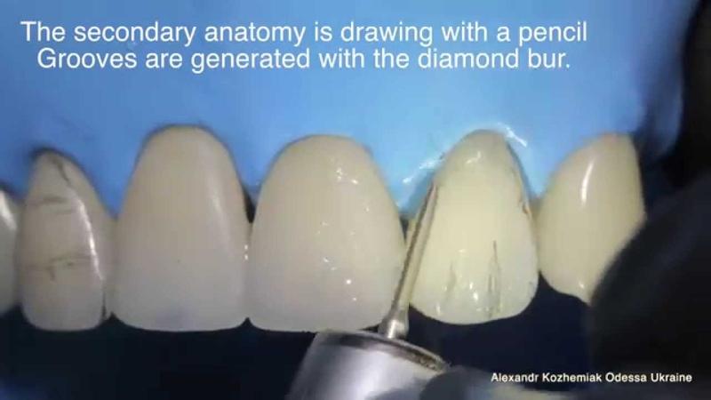 Educational video Direct restoration of frontal teeth Part 2 Finishing Polishing