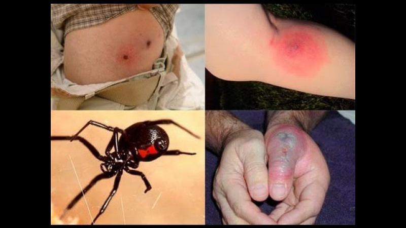 человек картинки укус самого ядовитого паука употреблялось