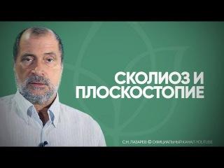 Лазарев С.Н. -  Сколиоз и плоскостопие
