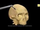 Neurosurgery 3D Animation Video Pterional Craniotomy