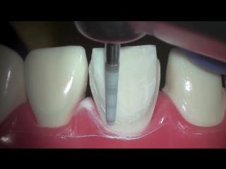 Veneer prep. стоматология.