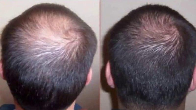 Средство от выпадения волос МИНОКСИДИЛ Применение миноксидила Отзывы о миноксидиле до и после