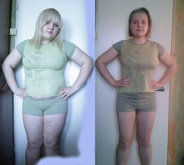 Юлия началова фото до и после пластики торт