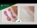 Sẹo lồi lâu năm CỰC KHÓ được loại bỏ sau 6 lần điều trị