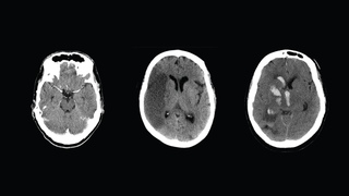 How to Read a CT Scan of the Head - MEDZCOOL