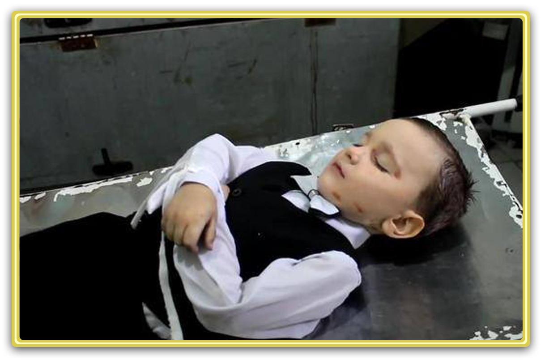 Страшная трагедия Донбасса: убитые и изувеченные дети ЛДНР (ФОТО 21+)
