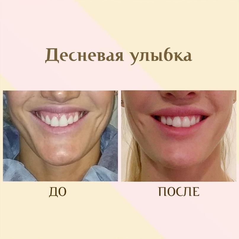 Губы и область вокруг рта., изображение №14
