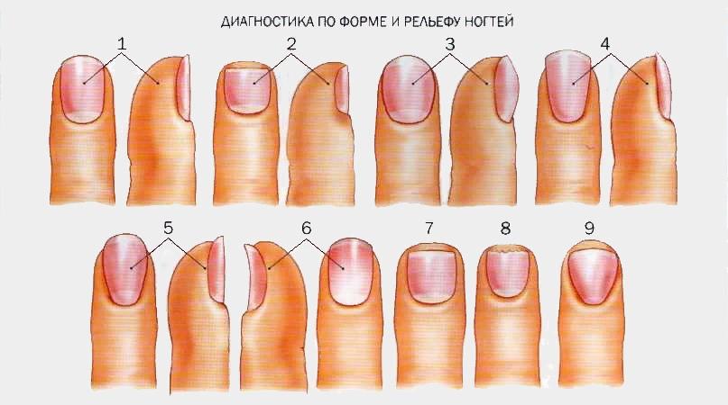 О каких болезнях можно узнать по ногтям., изображение №1