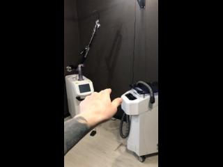 Новый лазер для удаления тату в Tessito's