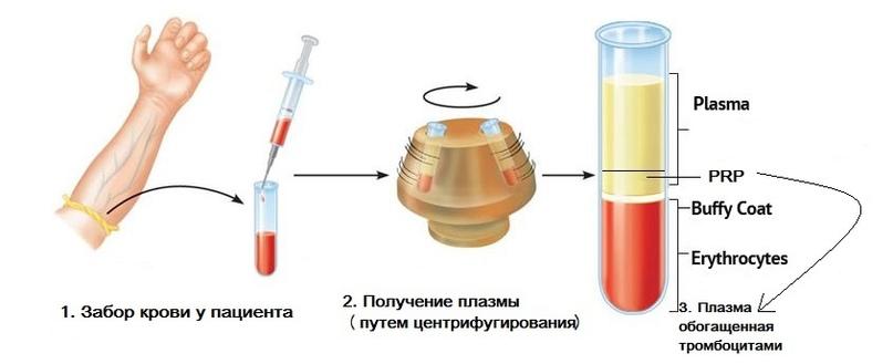 Плазмотерапия: что это и для кого, изображение №5